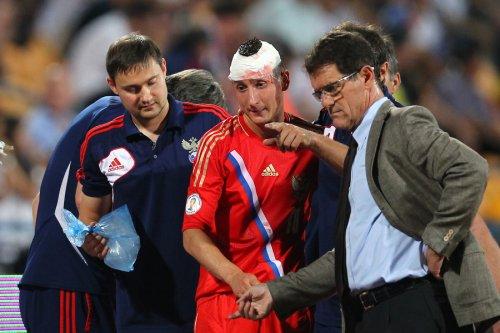 Трое игроков сборной России получили травмы