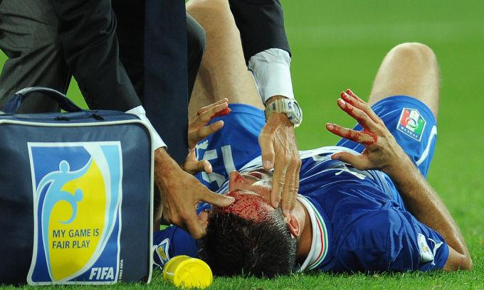 Рассечения Паскуаля, Руни и еще 5 знаковых травм головы (ФОТО)